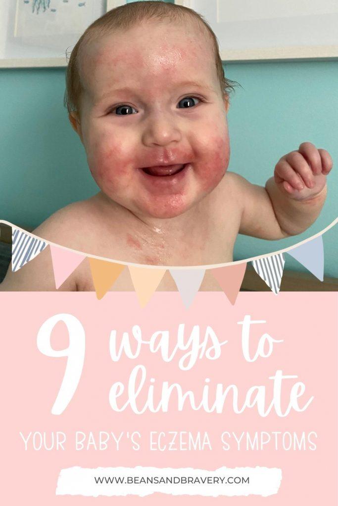 baby with eczema